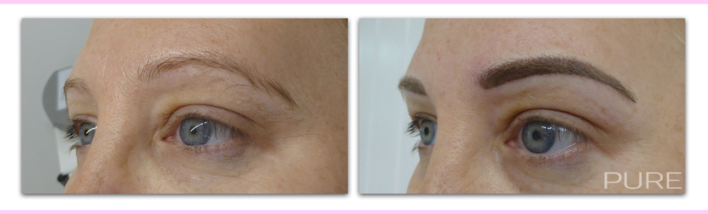 eyebrow micropigmentation caterham