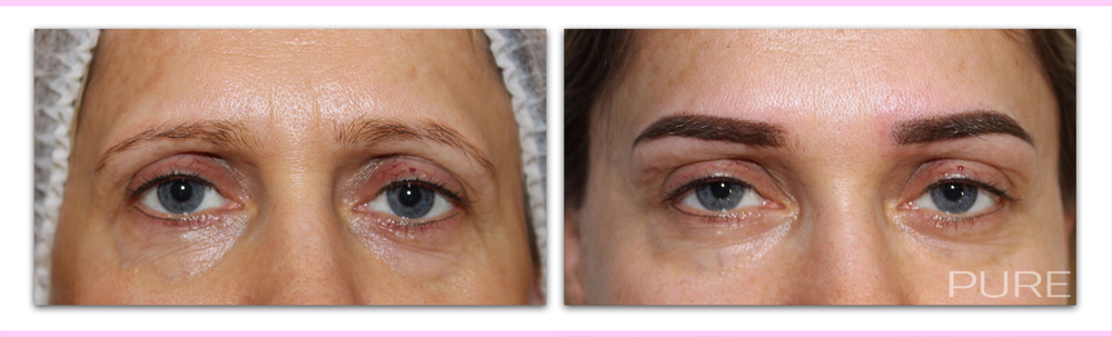 permanent makeup redhill