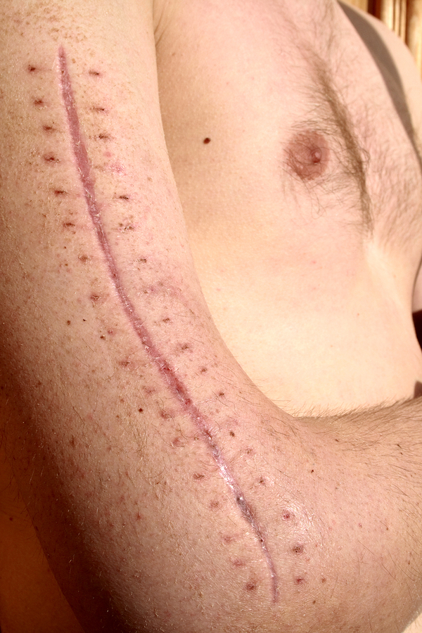 Accident Scar Removal Treatment