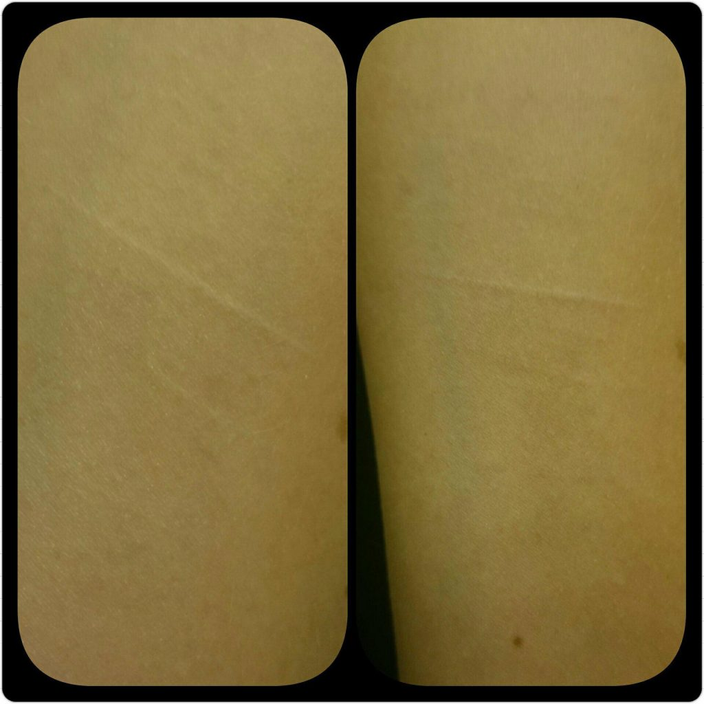 Self Harm Scar Removal