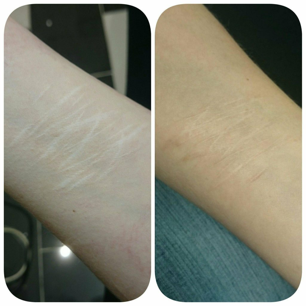 self harm scar treatment
