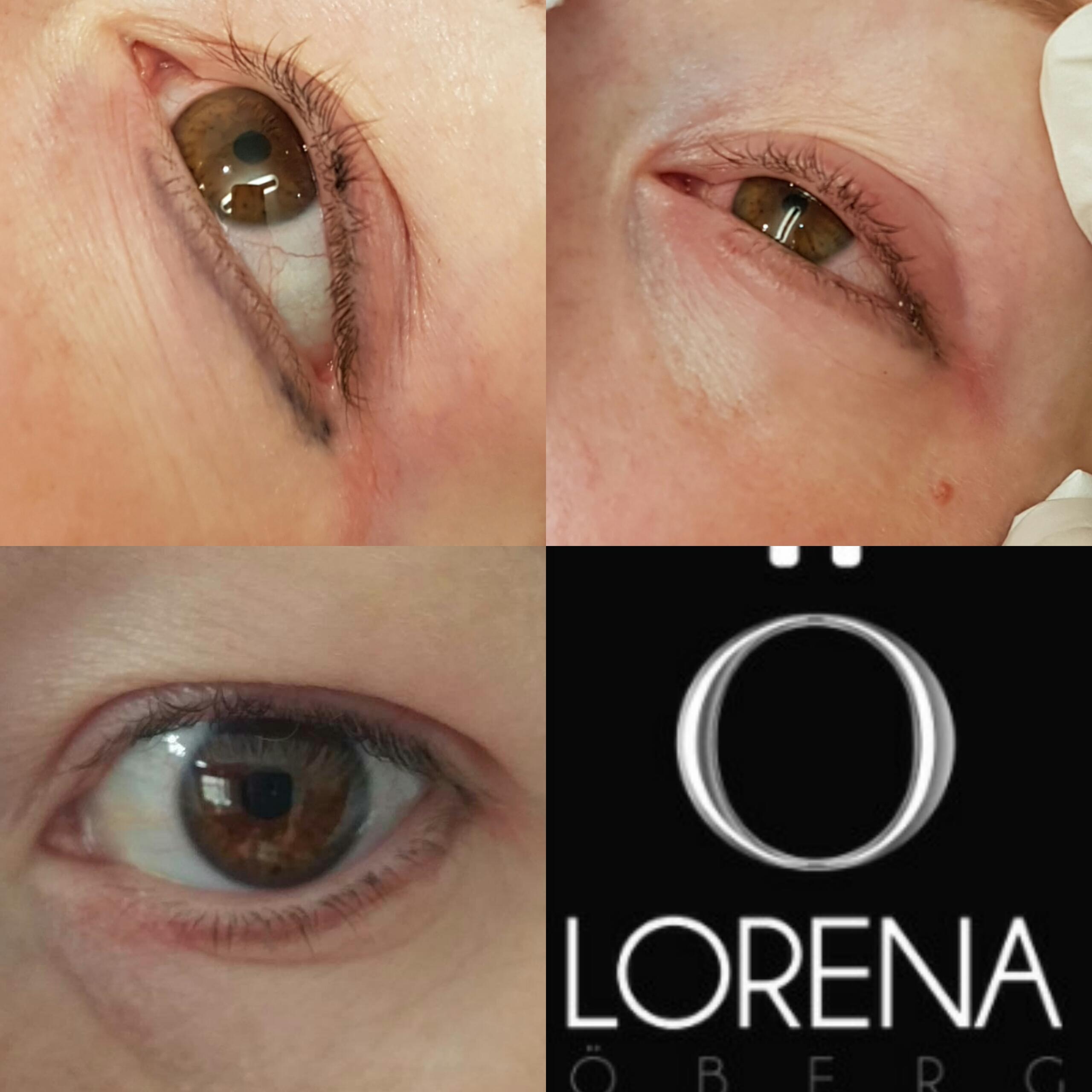 Removing tattooed eyeliner and eyeliner migration lorena for Laser tattoo removal certification