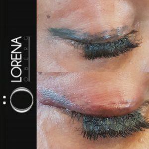 Tattoo Eyeliner Removal Correction Migration Lorena Oberg