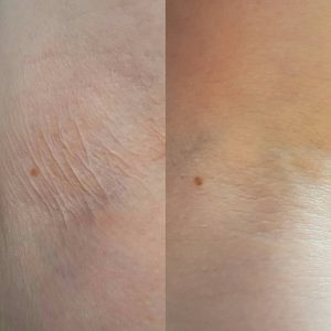 Crepey Skin Treatment Before and After