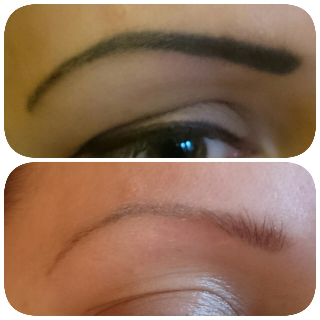 Tattoo Eyebrow Removal Before and After \u2022 Lorena Oberg