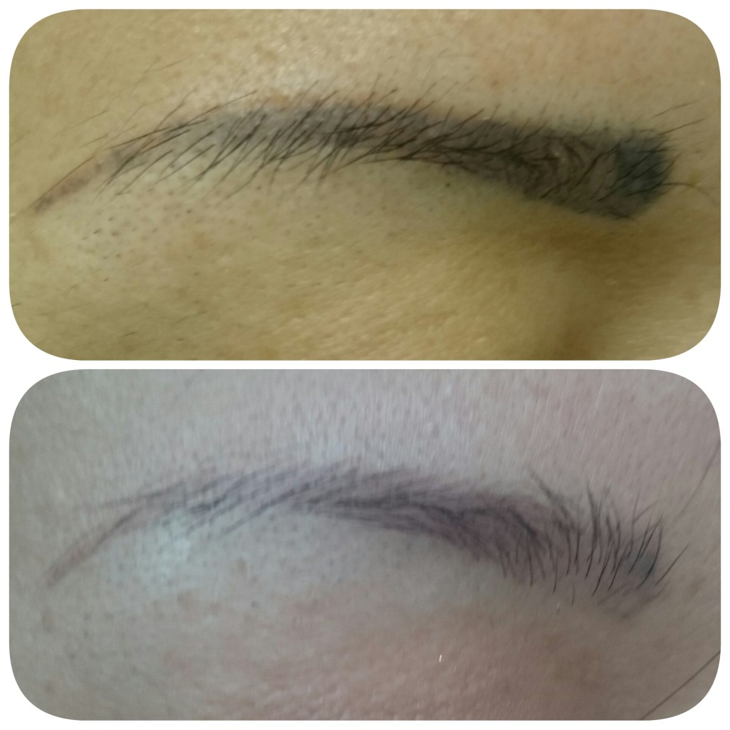 Tattoo Eyebrow Removal Before and After • Lorena Oberg