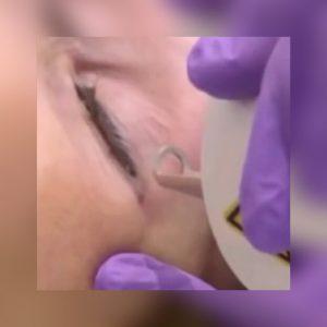 Laser Tattoo Eyeliner Removal