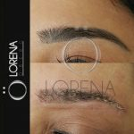 Laser Microblading Eyebrow Removal