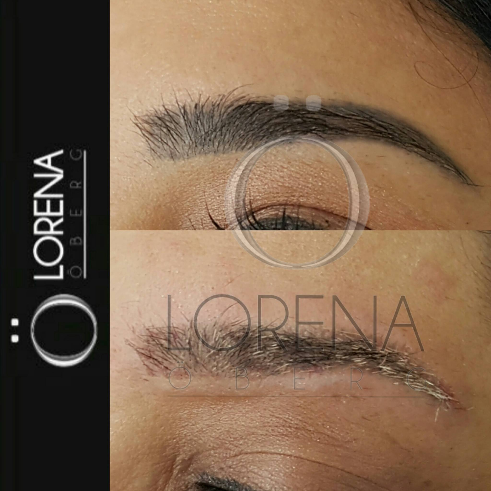 Tattoo eyebrow removal before and after lorena oberg for Eyebrows tattoo removal laser
