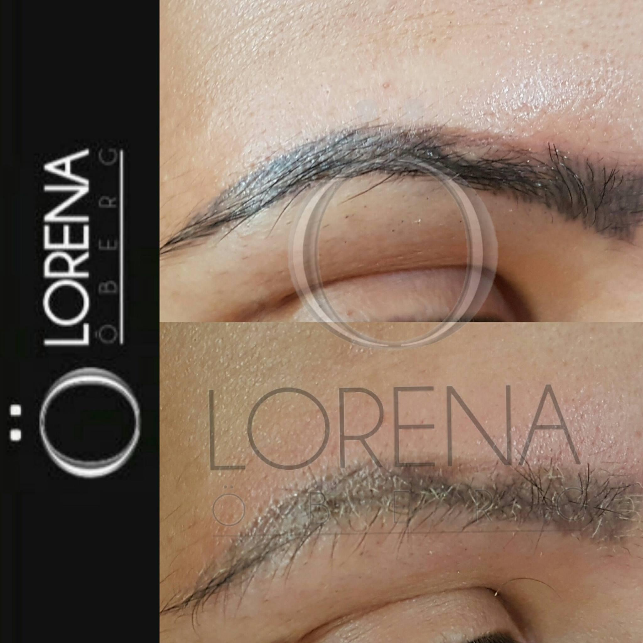 Microblading Eyebrow Removal and Correction - London