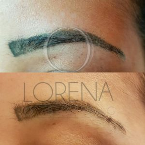 Eyebrow tattoo removal pmu removal london surrey beirut for Eyebrows tattoo removal laser