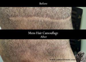 Scalp Pigmentation Reversal
