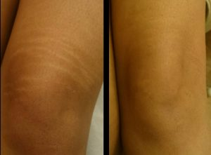 hypopigmentation treatment