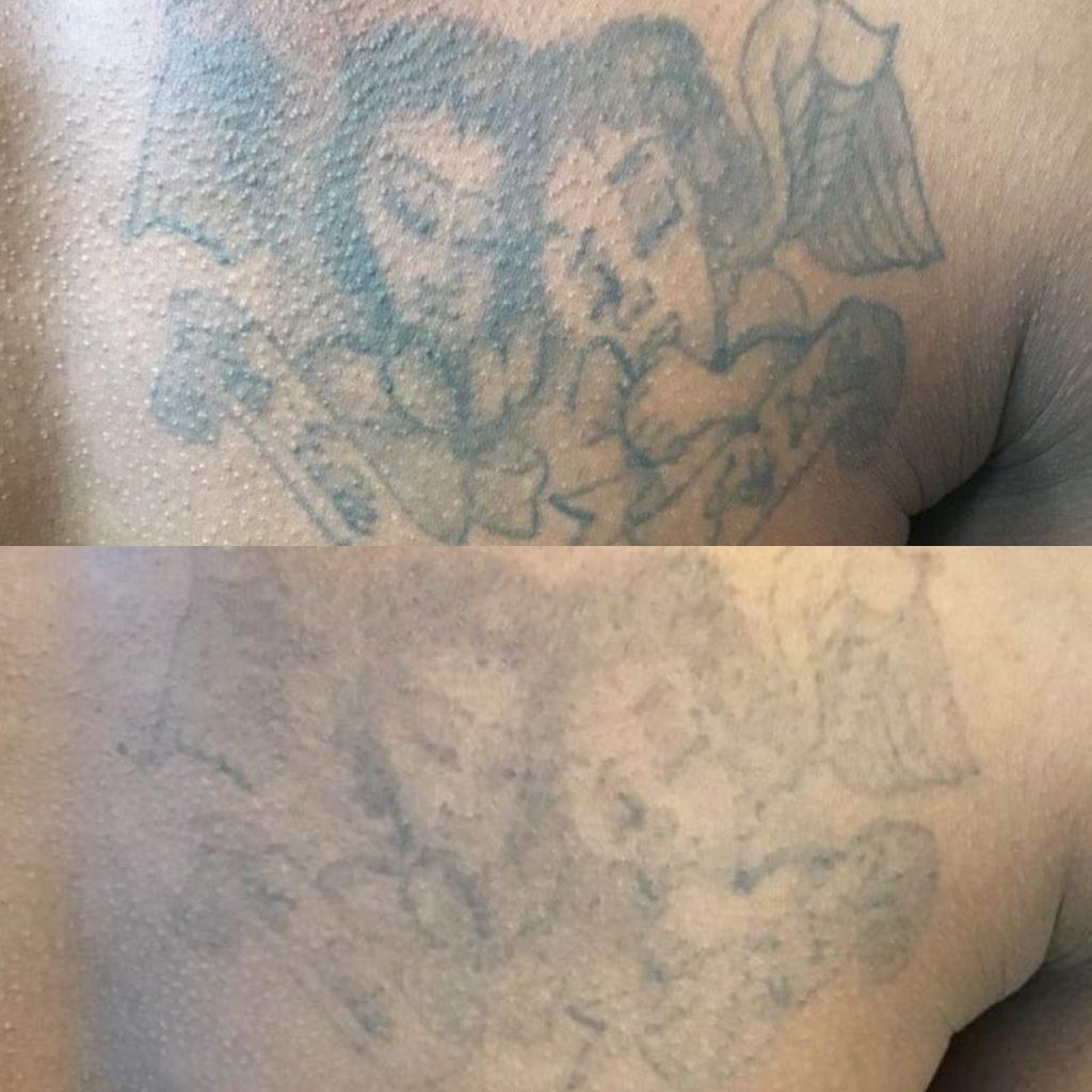 Tattoo Removal On Black Asian Skin Lorena Oberg 1,773 likes · 12 talking about this. tattoo removal on black asian skin