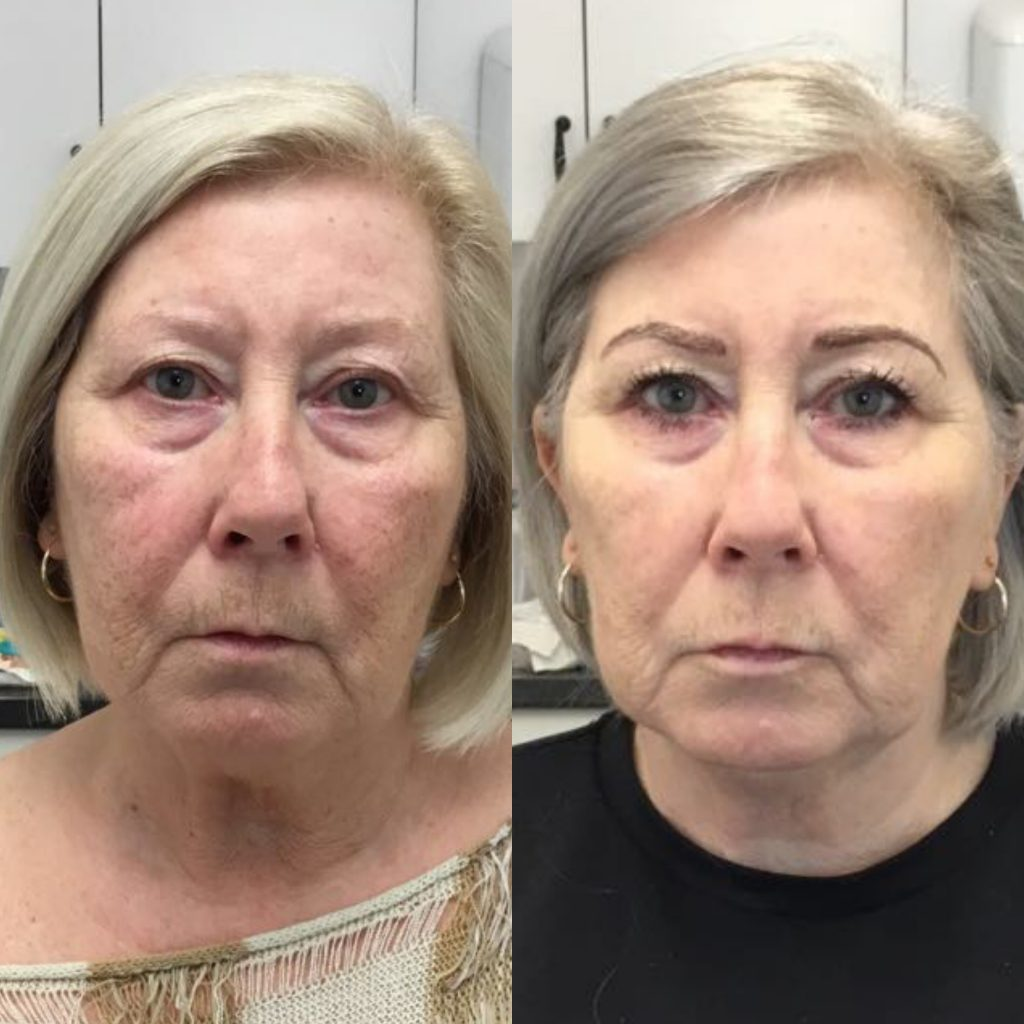 Fillers on older women