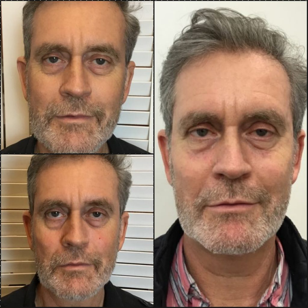 Male Facial Fillers Before and After