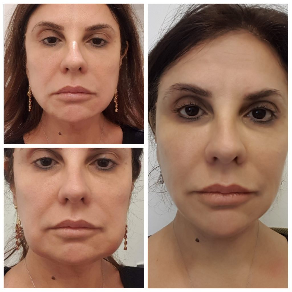 Best Treatment for Jowls